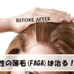 女性の薄毛【FAGA】は治る?原因と対策方法まとめ!